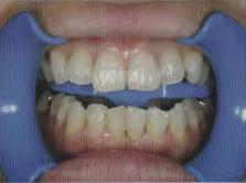 口角鉤を口腔内に配置